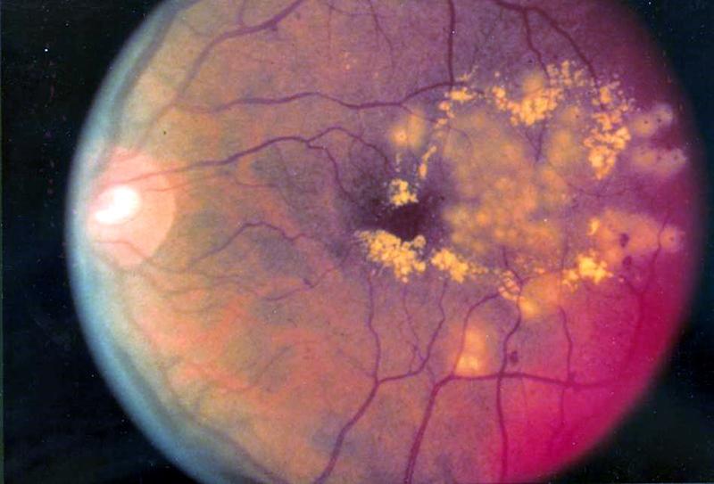 Днес е Световният ден за борба с глаукомата