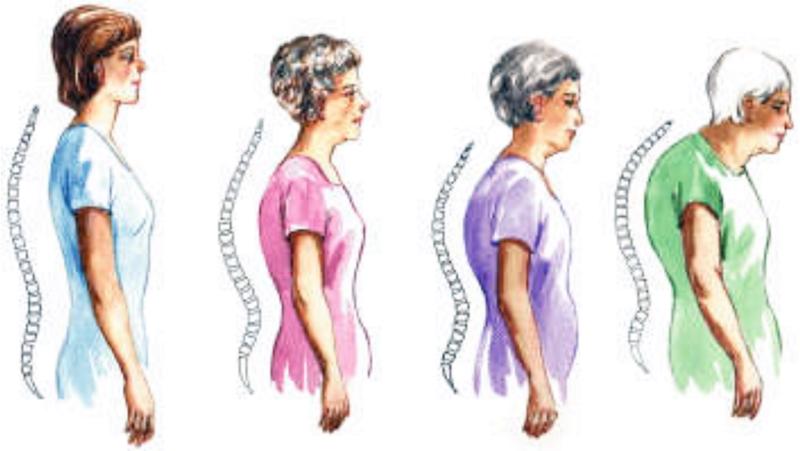 20 октомври – Световен ден за борба с остеопорозата