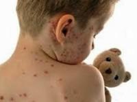 Нови 26 болни с варицела и един с туберкулоза в Плевенска област