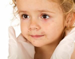 47 нови заразени с варицела за седмица в Плевенско