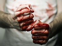Двама в болница след сбиване в Кнежа
