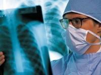 Тази седмица в Плевен се провеждат безплатни прегледи за туберкулоза