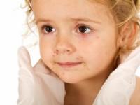 20 са болните от варицела в Плевенско, регистрирани за седмица, три са случите на скарлатина