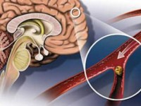Клиниката по неврология в УМБАЛ – Плевен с инициативи за Световния ден за борба с инсулта