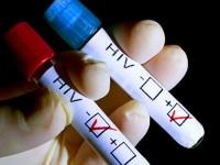 187 плевенчани са се изследвали за СПИН