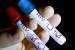 46 човека са се изследвали за СПИН в Плевен за седмица