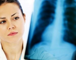 Безплатни прегледи за туберкулоза ще се проведат в Плевен