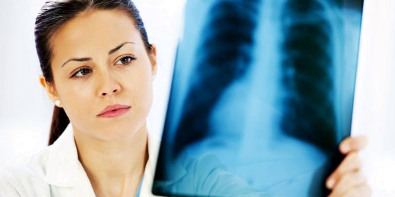 Нови случаи на менингит и туберкулоза са регистрирани в Плевенско