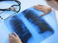 Безплатни прегледи за туберкулозa от днес до 16 март в Плевен!