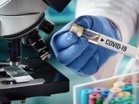 Хотел в Плевен настанява безплатно медици, ангажирани с борбата с коронавируса