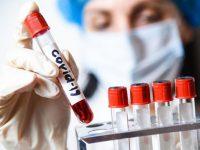 753 са новодиагностицираните с коронавирус, в област Плевен – 33!