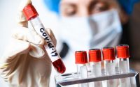 Коронавирус: 81 новозаразени, в област Плевен – 2