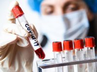 Коронавирус: 3556 новозаразени и 2477 излекувани, в област Плевен – 83 положителни проби