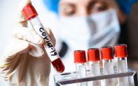 1038 са новорегистрираните случаи на коронавирус, в област Плевен – 24!
